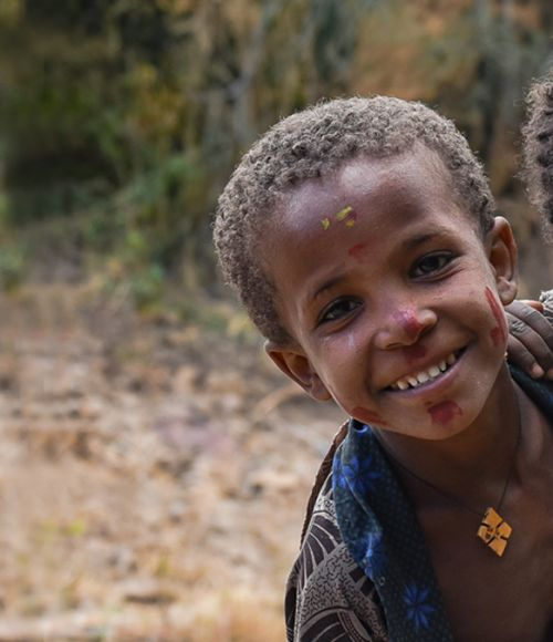 Malnutrition Fasting Ethiopia Community Labs ThinkPlace